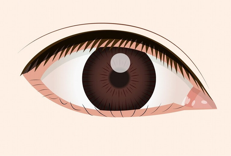睫毛内反症・眼瞼内反症とは ?