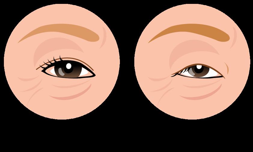 眼瞼下垂症・目のたるみ